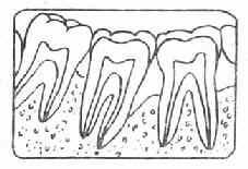 牙槽骨Ⅱ吸收