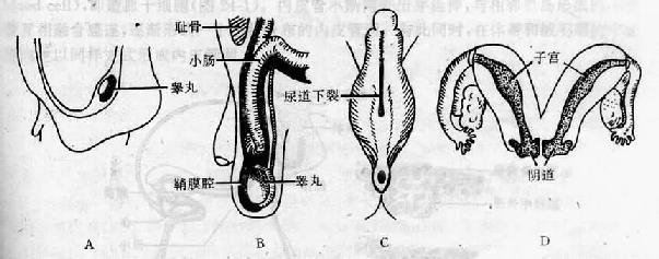 生殖系统先天性畸形