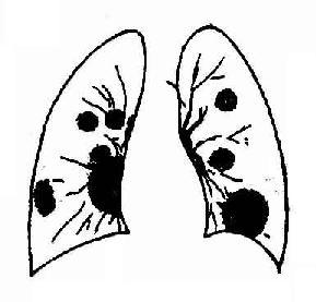两肺转移瘤血行播散