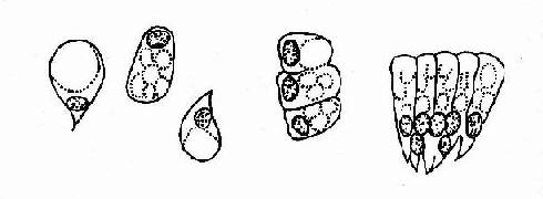 粘液柱状上皮脱落细胞示意图