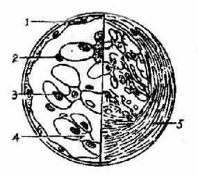 新月体性肾小球肾炎模式图