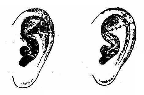 耳廓外伤的缝合