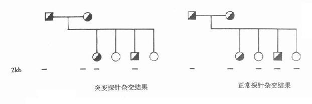 正常与突变苯丙氨酸羟化酶探针与PKU家系成员的DNA杂交结果