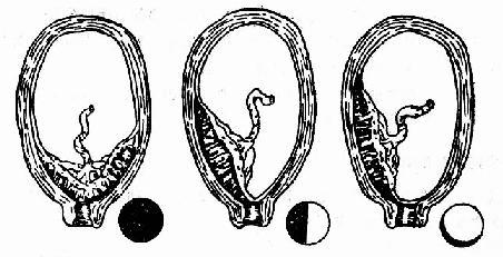 前置胎盘类型