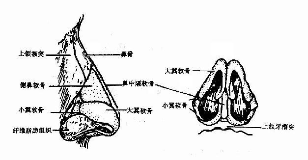 外鼻骨和软骨支架