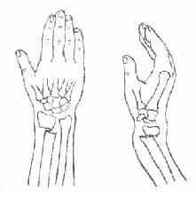 桡骨下端伸直型骨折典型移位