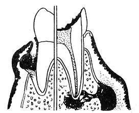 牙周脓肿与牙槽脓肿的鉴别