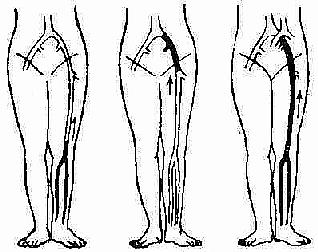 下肢深静脉血栓形成的类型