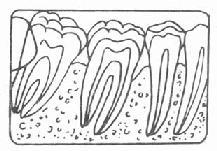 牙槽骨Ⅰ度吸收