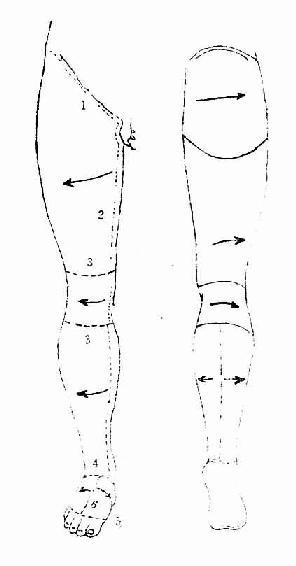 下肢的皮膚切口