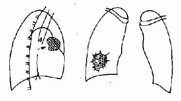 周圍型肺癌呈側位