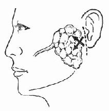 腮腺脓肿切开引流切口在耳屏前