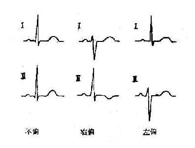 心电轴简单目侧法