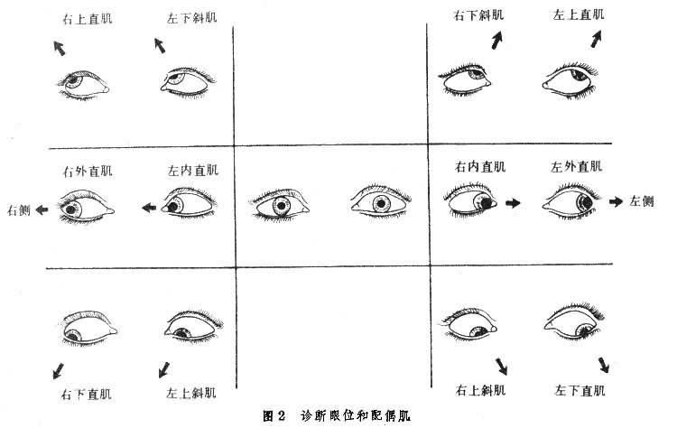 诊断眼位和配偶肌
