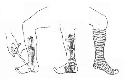 踝部内侧韧带损伤