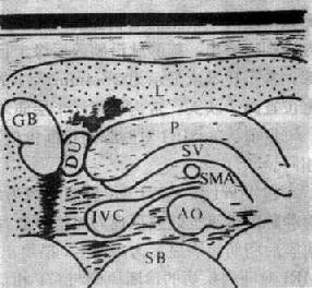 正常胰腺声像图