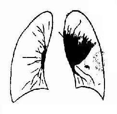 左侧肺门型肺癌