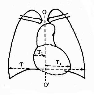 心胸比率测量图