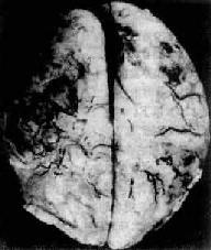 化脓性脑膜炎