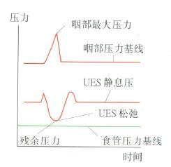 UES松驰时压力曲线呈M型