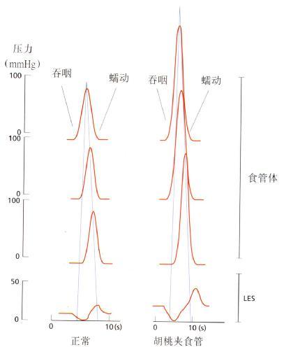 胡桃平食管病的测压结果图