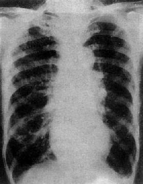 慢性肺原性心脏病