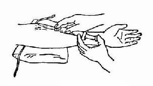 静脉注射操作方法