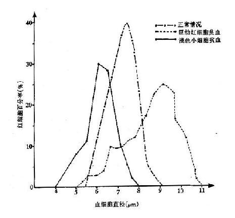 红细胞大小分布曲线