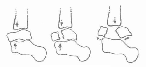 距骨颈及体部骨折及移位