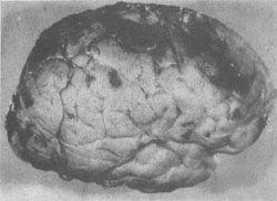 大脑缺血性脑病
