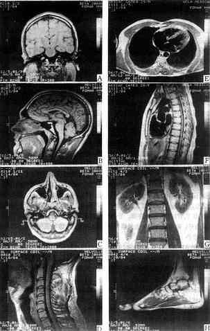 不同器官结构的MRI
