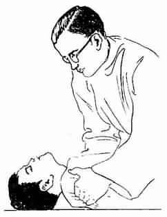 灰髓炎病人的抬肩仰頭征