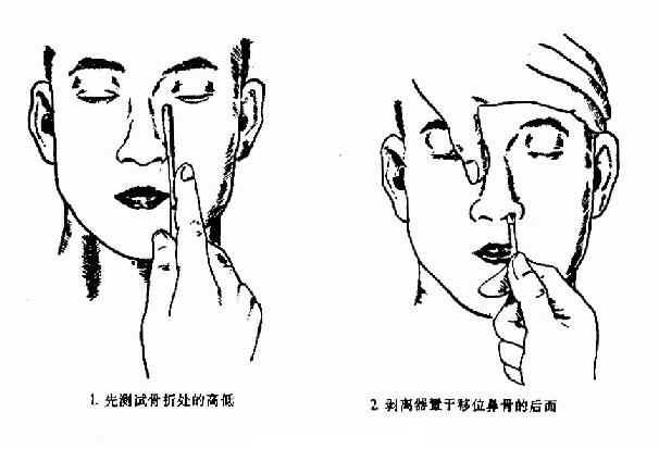 剥离器复位法