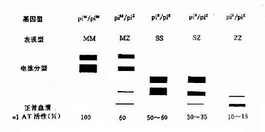 常见α1AT变异型电泳图谱及其活性
