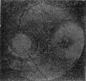 黄斑区视网膜下血肿