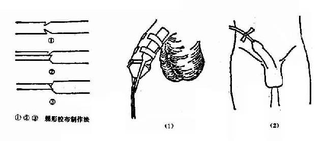 男病人留置导尿管固定法