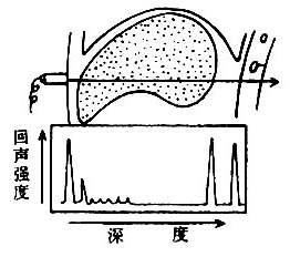 A型回声图示意图回声图