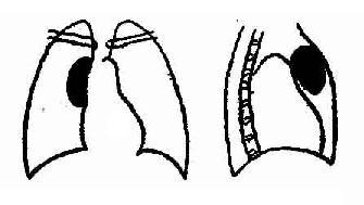 皮样囊肿侧位示肿瘤位于前纵隔