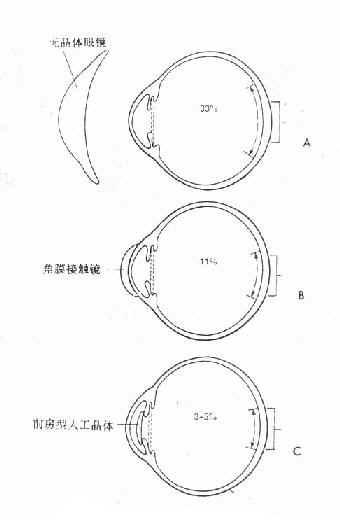 无晶体眼光学矫正