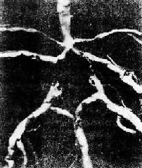 脑底动脉Willis环及其分支粥样硬化