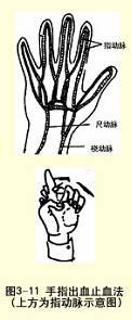 手指出血止血法