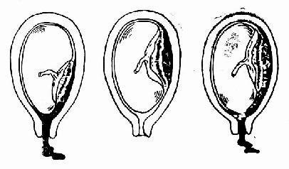 胎盤早期剝離的類型