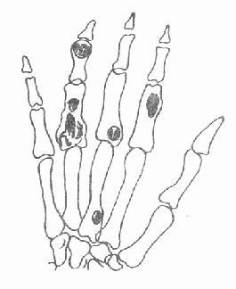 指(掌)骨多发性软骨瘤