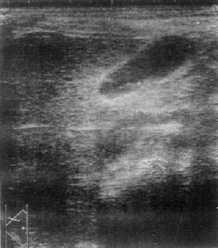 正常胆囊声象图