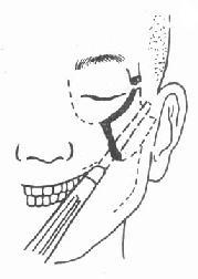 口内切开复位法