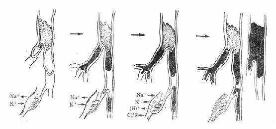 动脉栓塞远端电解质变化