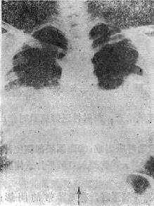 心源性肺水腫的X線表現