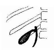 静脉法胆囊造影,胆囊呈层状显影