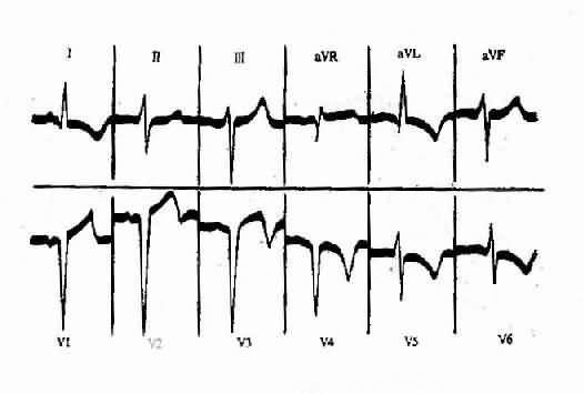 急性前壁心肌梗塞恢復期