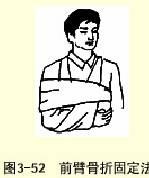 無夾板前臂前臂骨折固定法